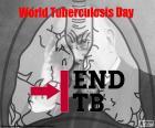 Día Mundial de la Tuberculosis, 24 de marzo. La tuberculosis es una de las principales causas de muerte entre las enfermedades infecciosas en el mundo. En 1882, Robert Koch anuncia el descubrimiento de la bacteria responsable de la tuberculosis