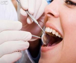 Puzzle de Revisión dental